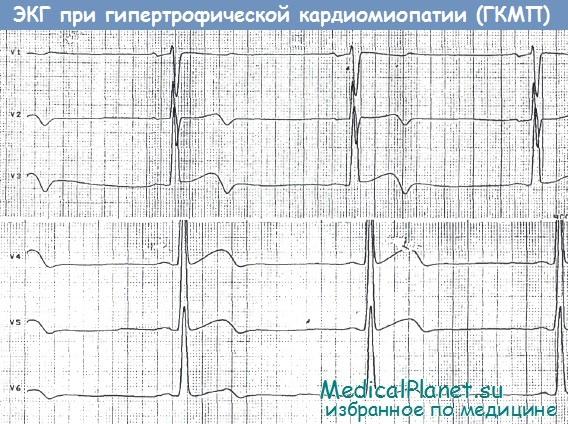 ЭКГ при гипертрофической кардиомипатии