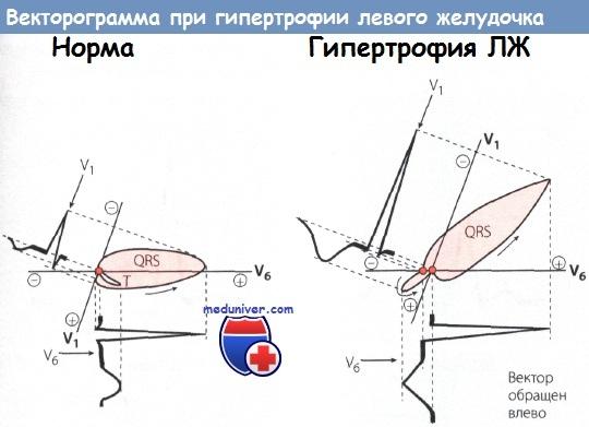 Признаки гипертрофии левого желудочка на ЭКГ