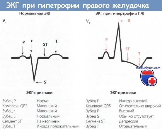 Признаки гипертрофии правого желудочка на ЭКГ