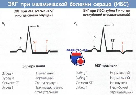 Признаки ишемической болезни сердца (ИБС) на ЭКГ