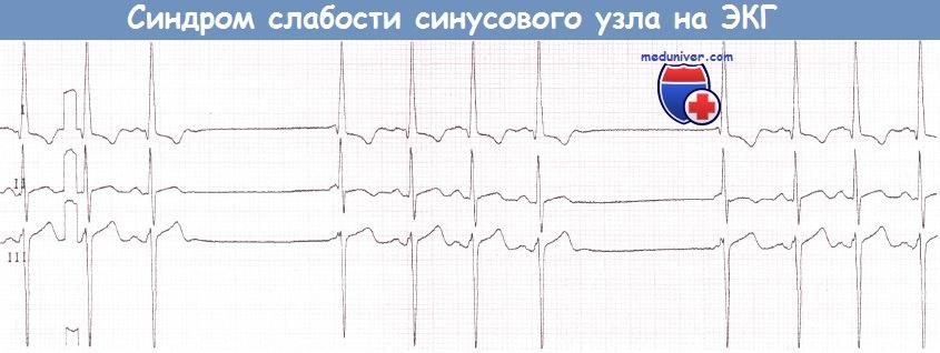 ЭКГ при синдроме слабости синусового узла (СССУ)