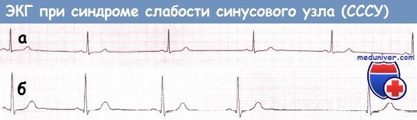Синдром слабости синусового узла экг признаки