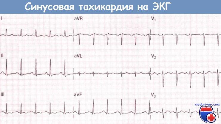 ЭКГ при синусовой тахикардии