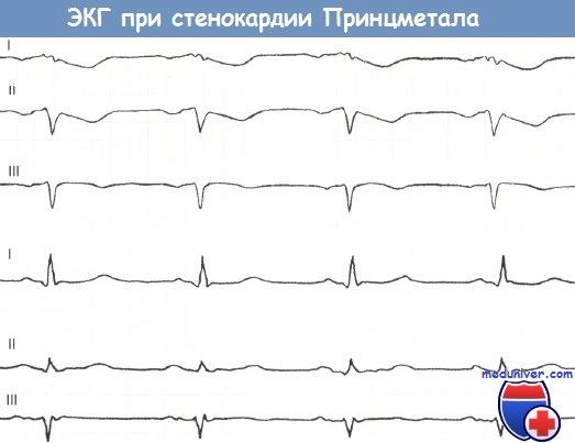 ЭКГ при стенокардии Принцметала