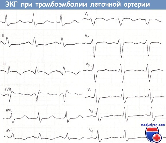Признаки ТЭЛА (тромбоэмболии легочной артерии, острого легочного ...