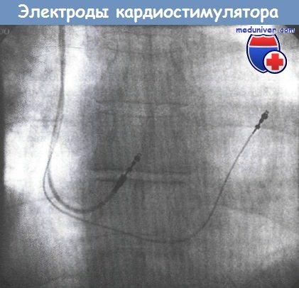 Электроды кардиостимулятора