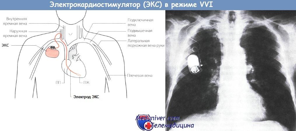 Электрокардиостимулятор в режиме VVI
