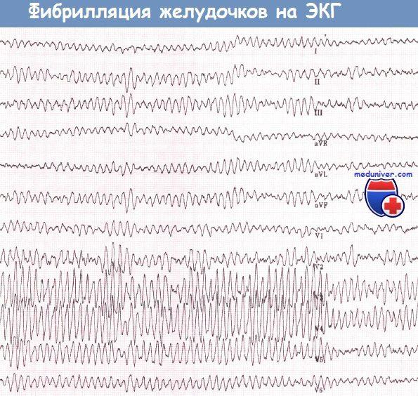 Фибрилляция желудочков сердца на ЭКГ