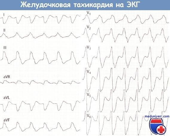 Признаки желудочковой тахикардии на ЭКГ