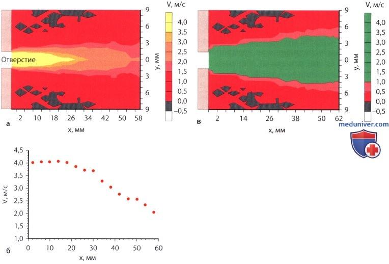 Ламинарный и турбулентный поток в эхокардиографии (ЭхоКГ)