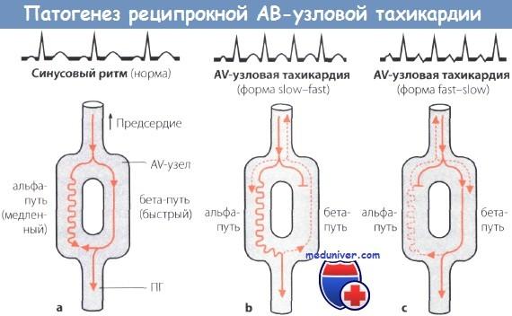 Антидромная ав реципрокная тахикардия