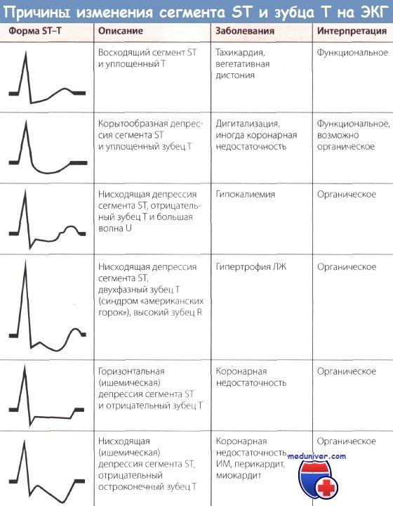 Причины изменения сегмента ST и зубца T на ЭКГ