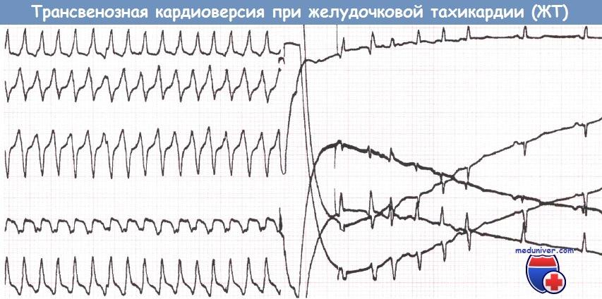 Показания к имплантируемому кардиовертеру-дефибрилятору, прогнозы, результативность и сложности реабилитации