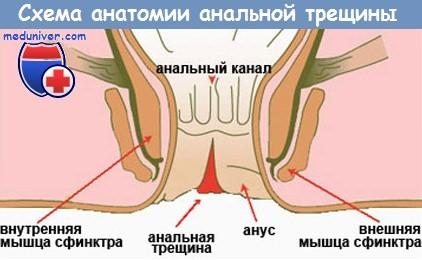 Анатомия анальной трещины