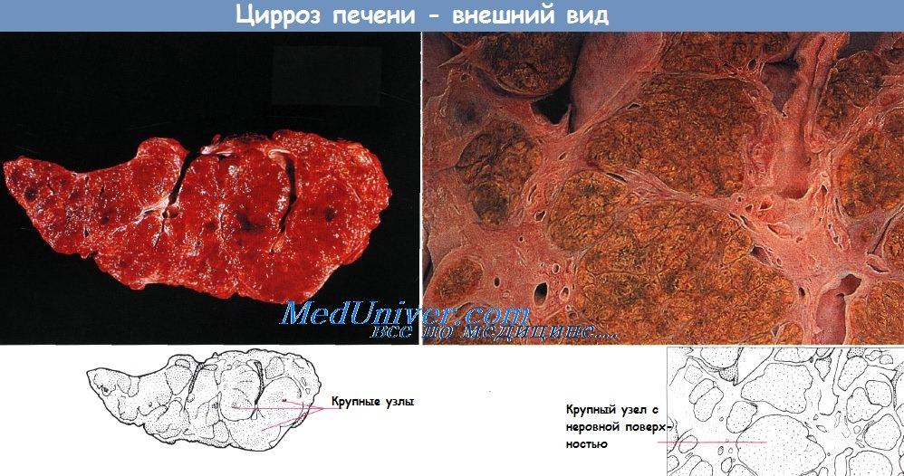 Цвет жировой ткани
