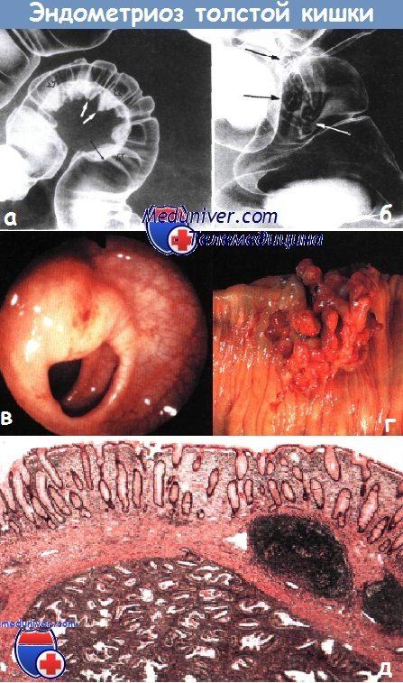 Эндометриоз толстой кишки