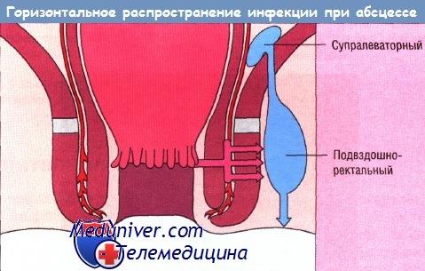 lechenie-svisha-analnoy-oblasti
