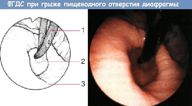 ФГДС при грыже пищеводного отверстия диафрагмы