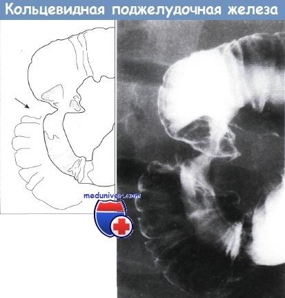 Кольцевидная поджелудочная железа