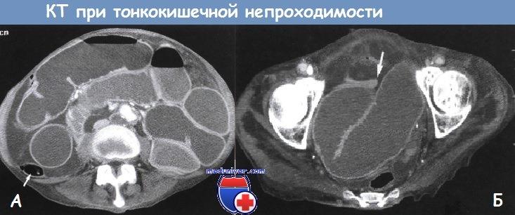 Боль слева под ребром отдает в плечо