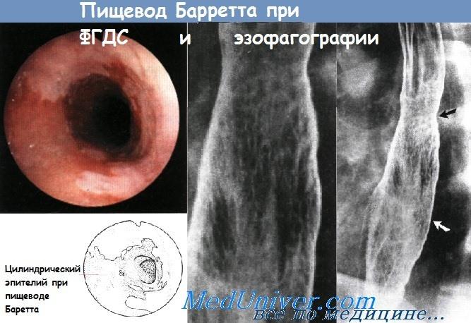 ФГДС и эзофагография при пищеводе Барретта