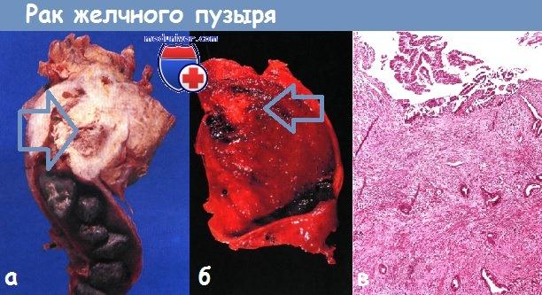 Гетеротопия в стенку желчного пузыря