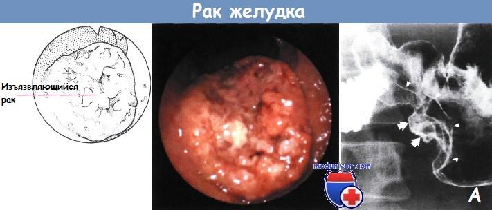 Дифференциальный диагноз язвы желудка и рака желудка thumbnail