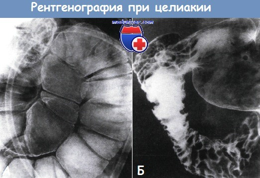 Рентгенография при целиакии