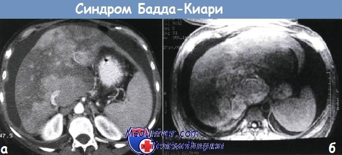 Механизм развития (патогенез) синдрома Бадда-Киари - тромбоза ...