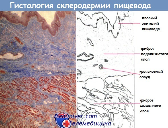Гистология склеродермии пищевода