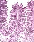 болезни тонкой кишки