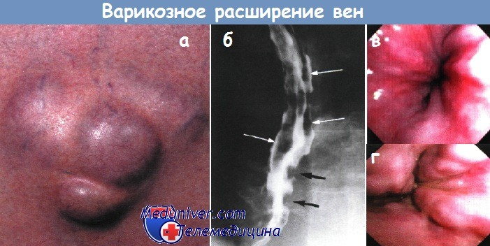 Варикозное расширение вен при циррозе печени