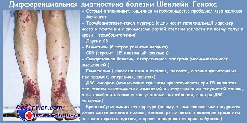 Пурпура Шенлейна-Геноха