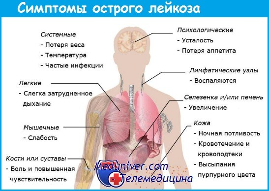 Как лечить простуду при лейкозе thumbnail