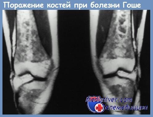 Поражение костей при болезни Гоше