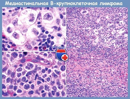 медиастинальная В-крупноклеточная лимфома