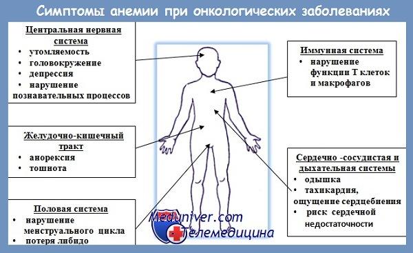 Анемия при раке