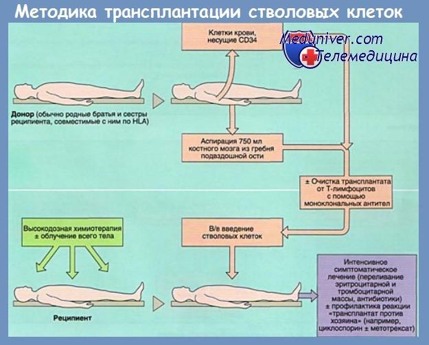 Методика трансплантации стволовых клеток - костного мозга