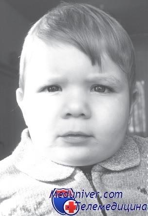 Мальчик с кариотипом 47XYY