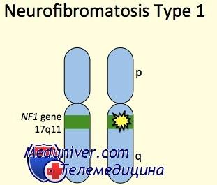 Генетика нейрофиброматоза 1 типа (НФ-1)