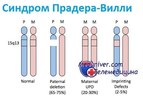 Генетика синдрома Прадера-Вилли (СПВ)
