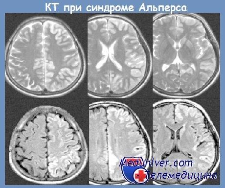 КТ при синдроме Альперса