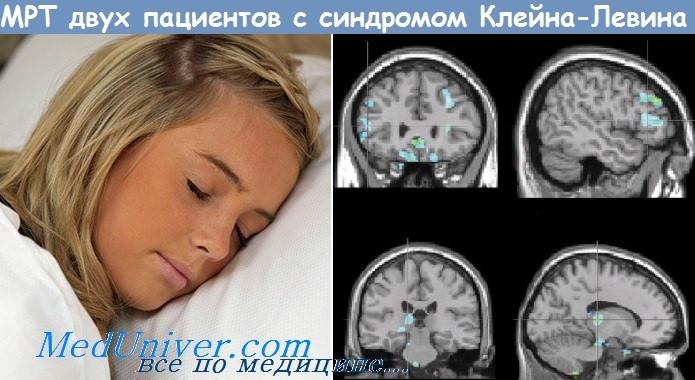 синдром Клейна-Левина