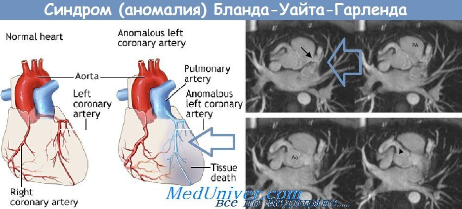 Синдром Бланда-Уайта-Гарленда