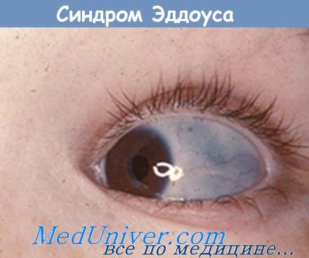 Голубые склеры при синдроме Эддоуса