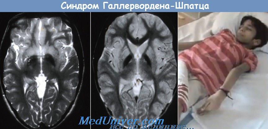 синдром Галлервордена-Шпатца