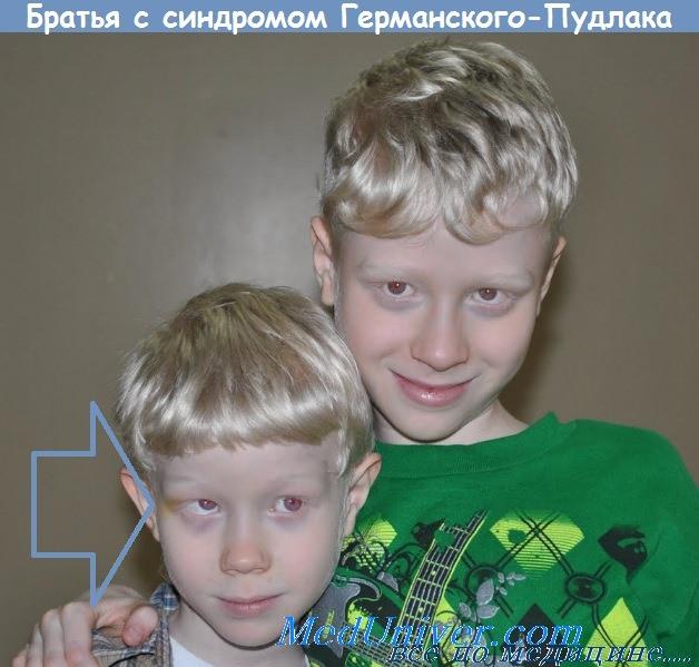 Братья с синдромом Германского-Пудлака