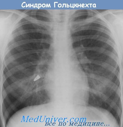синдром Гольцкнехта