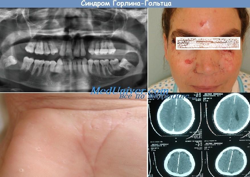 синдром Гольтца-Горлина