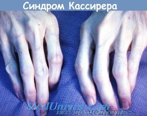 синдром Кассирера